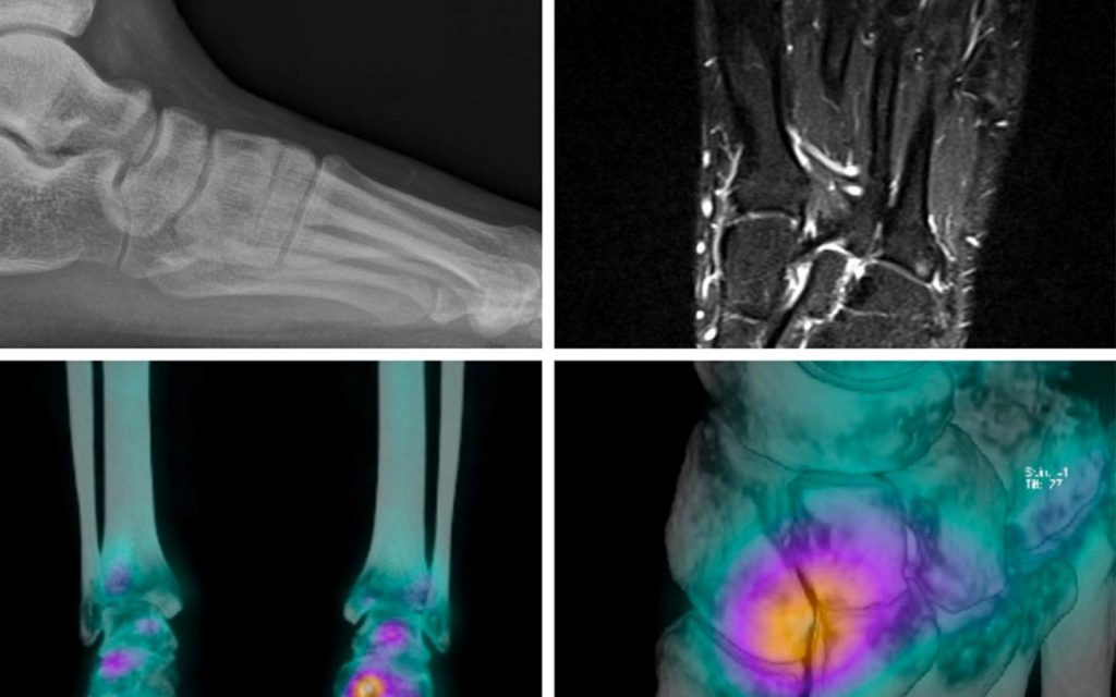 Musculoskeletal clinical case of the month Musculoskeletal clinical case of the month - SPECT