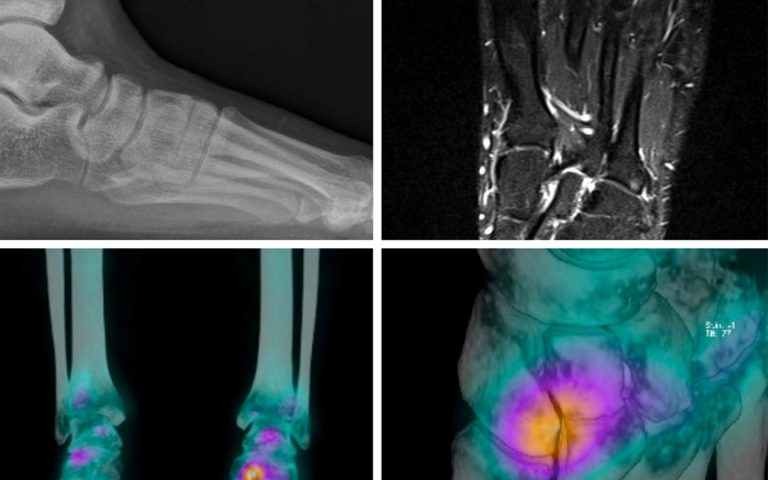 Musculoskeletal clinical case of the month News