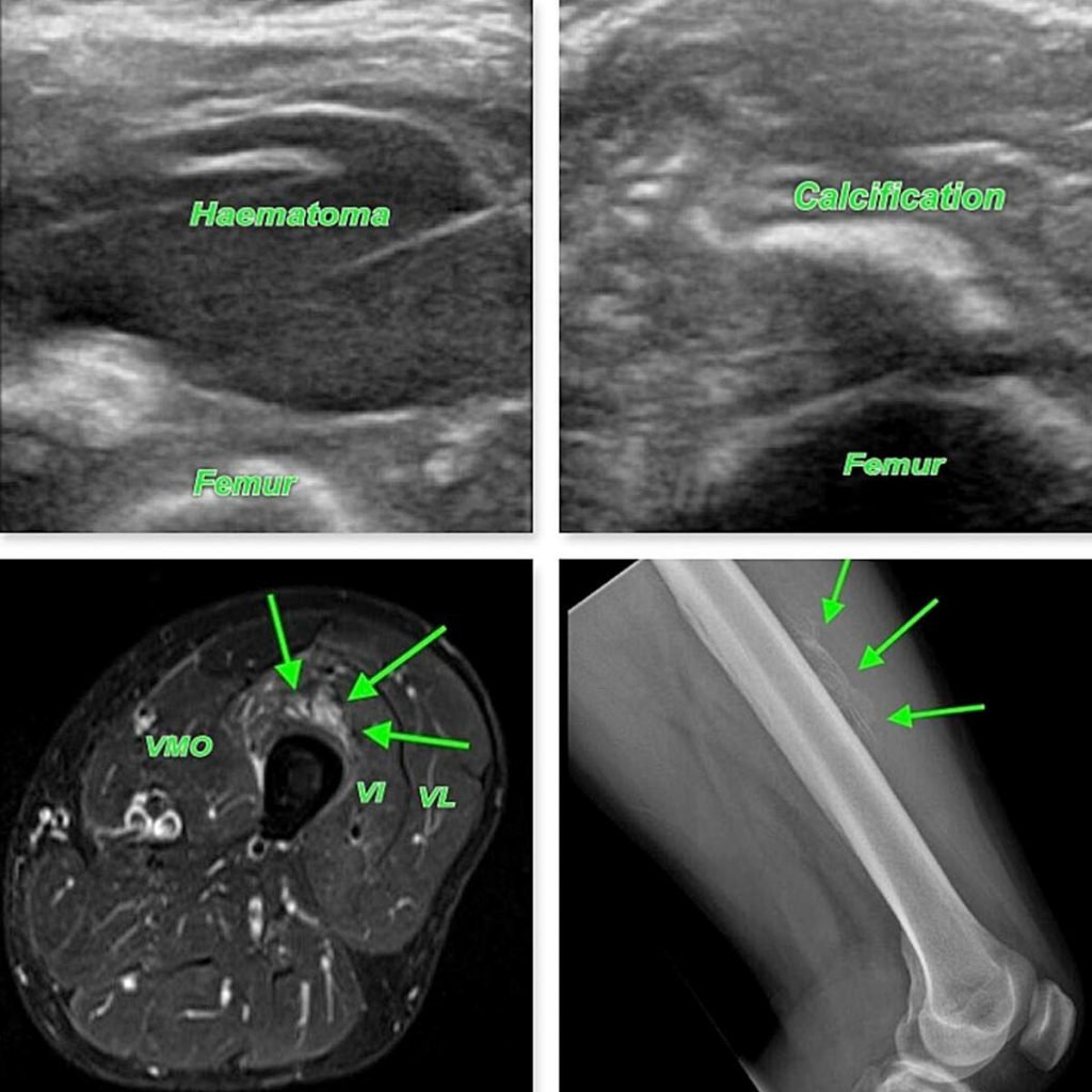 mo Musculoskeletal clinical case of the month - Myositis Ossificans