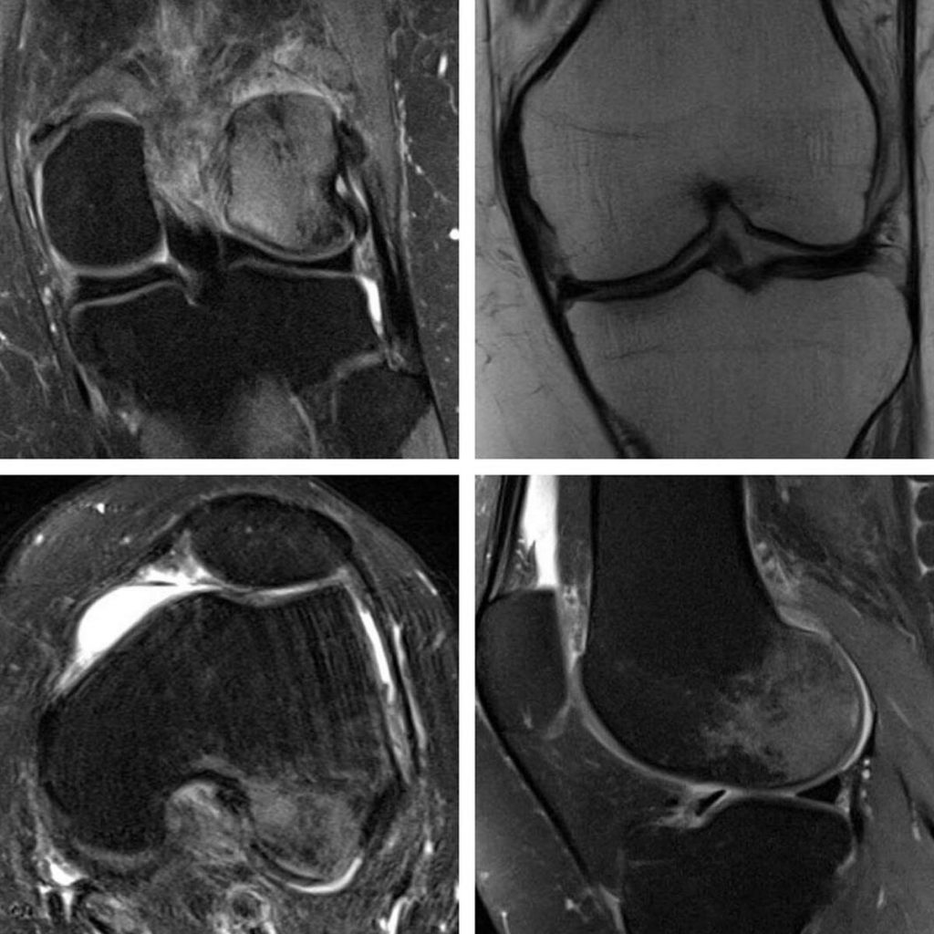 sonk Musculoskeletal clinical case of the month - SONK